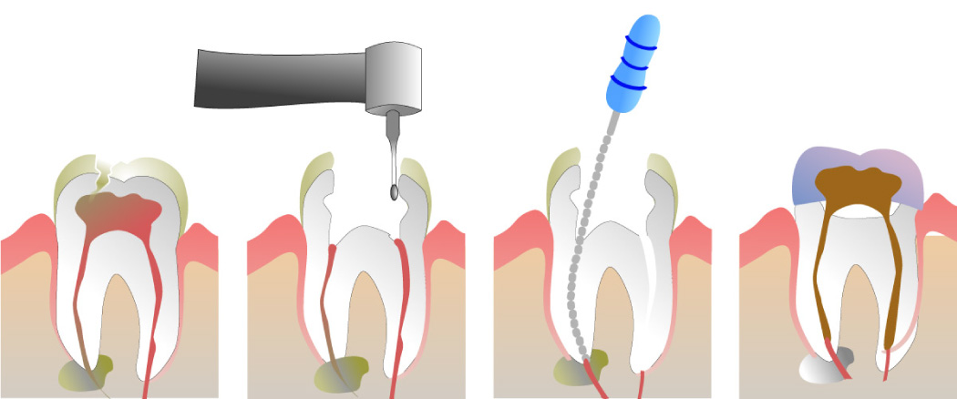 Graphic showing the steps of root canal therapy.