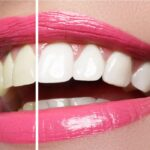 Close up of a pink lipsticked smile that is divided into before and after teeth whitening.
